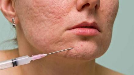 How to Treat Pitted Acne Scars