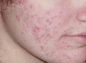 What are the treatments of Acne pitted scars